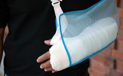 יד שבורה בגבס - נזקי גוף